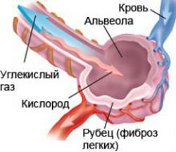 Tüdőfibrózis túlélése