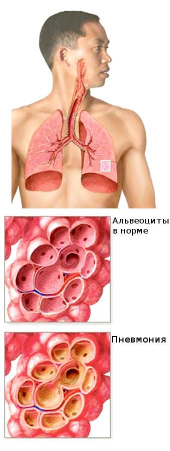 magas vérnyomás vízkezelése