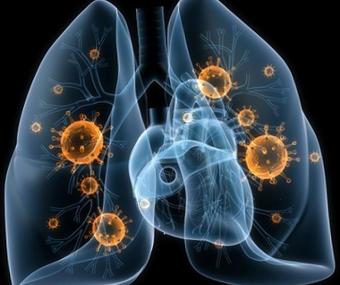 hogyan gyógyulnak a condylomiák papilloma hazi kezelese