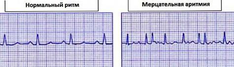 3 fokú magas vérnyomás diagnózisa magas vérnyomás vizsgálati módszerek