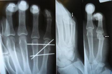 láb metatarsális ízületi fájdalom)