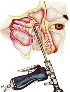 egy maxilláris ciszta hatása a látásra